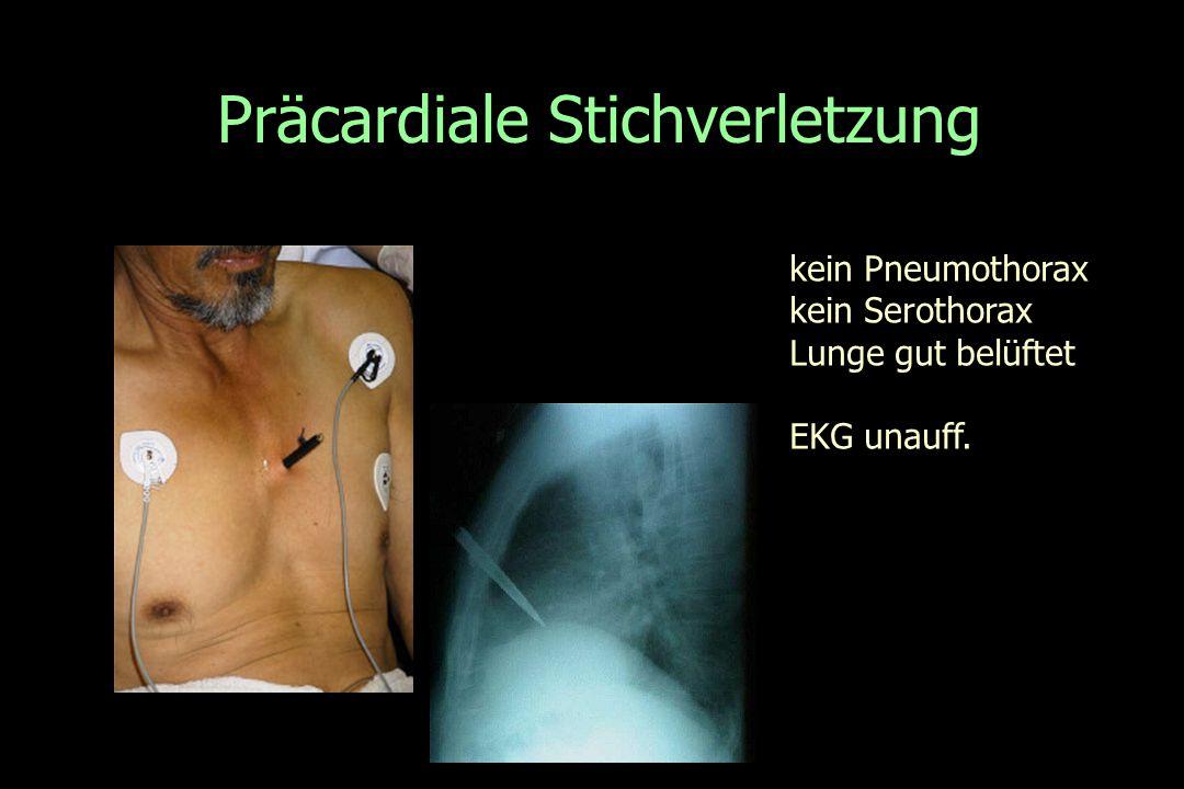 Präcardiale Stichverletzung