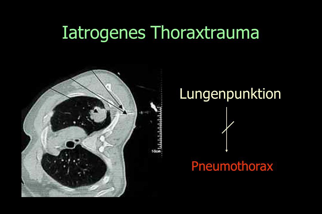 Iatrogenes Thoraxtrauma