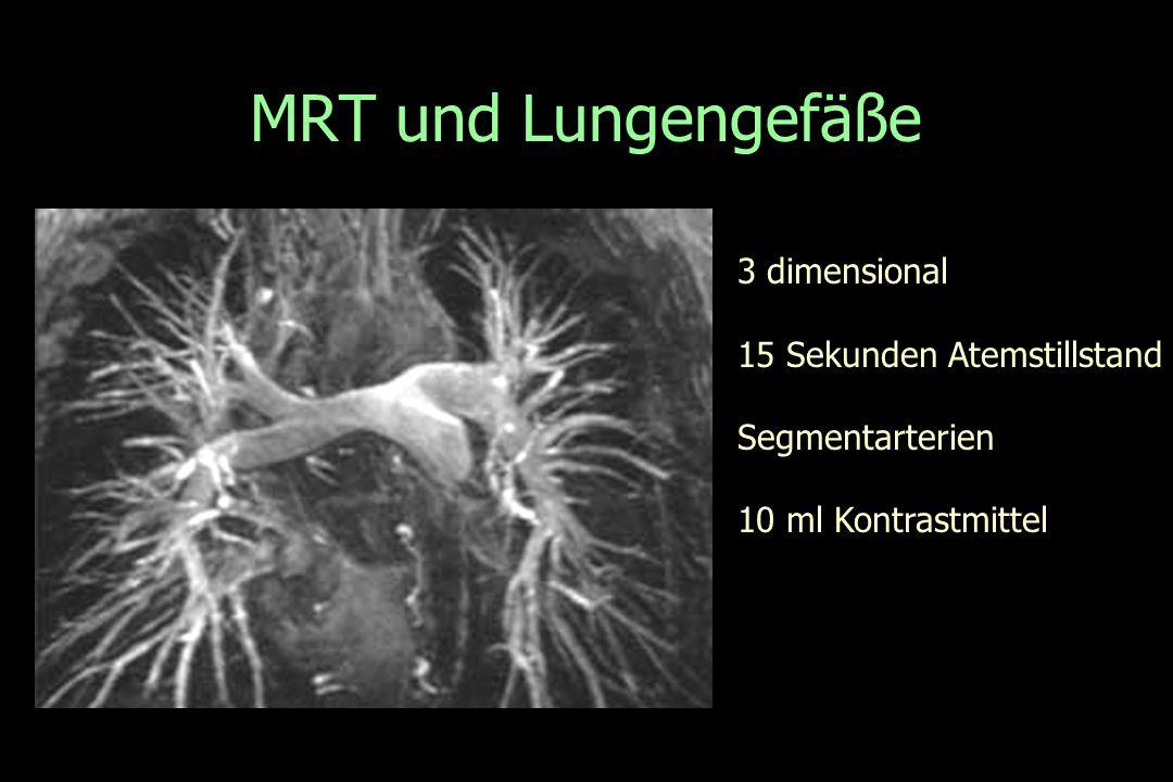 MRT und Lungengefäße 3 dimensional 15 Sekunden Atemstillstand