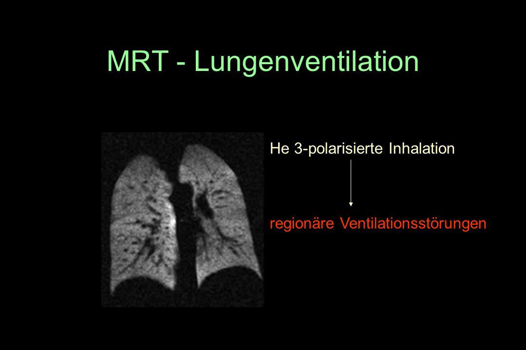MRT - Lungenventilation