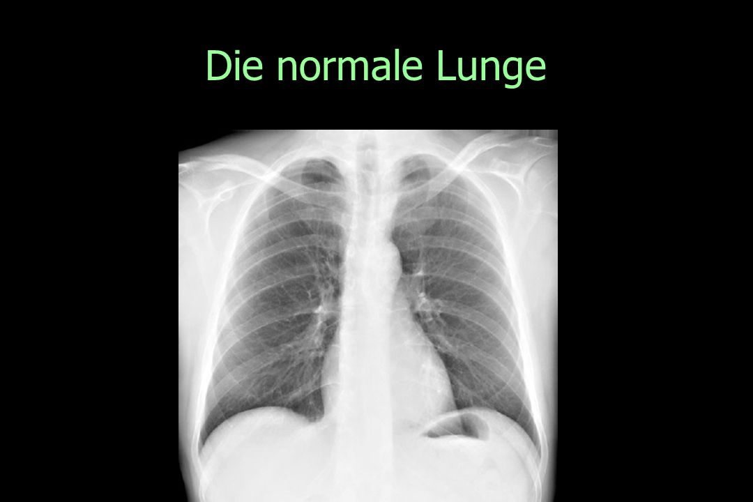 Die normale Lunge