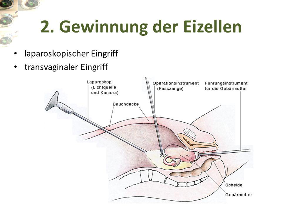 2. Gewinnung der Eizellen