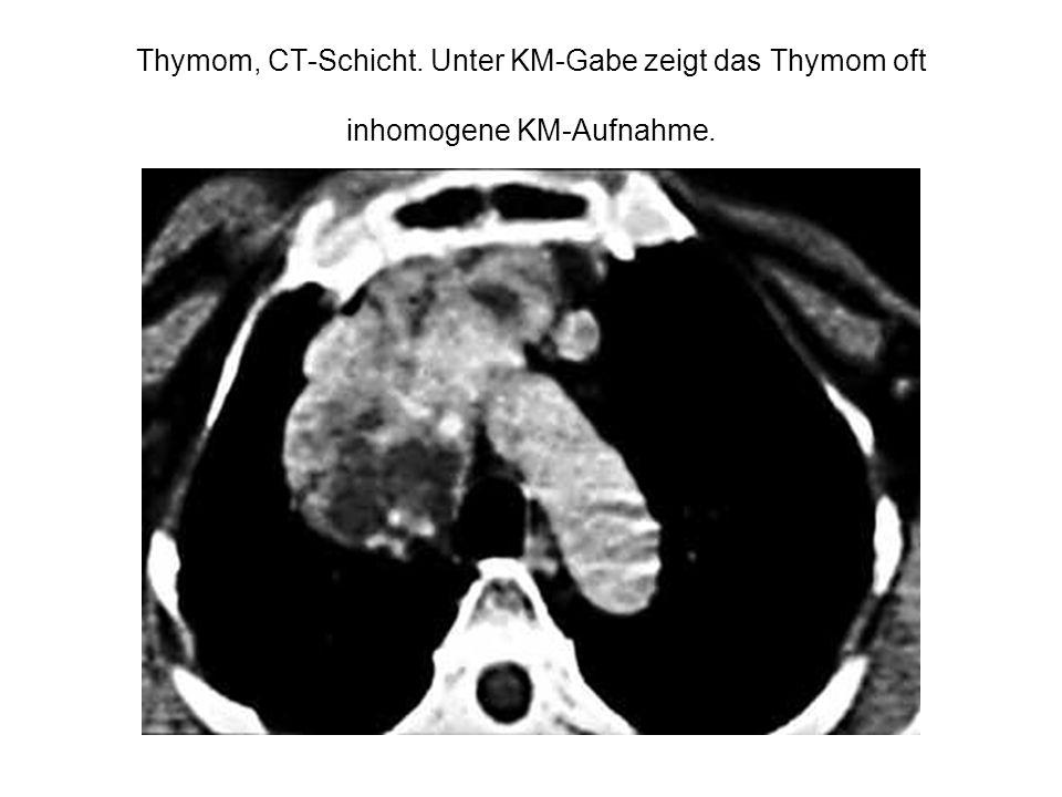 Thymom, CT-Schicht. Unter KM-Gabe zeigt das Thymom oft inhomogene KM-Aufnahme.