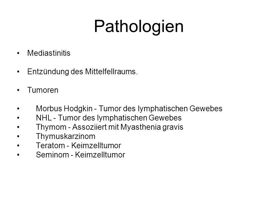 Pathologien Mediastinitis Entzündung des Mittelfellraums. Tumoren