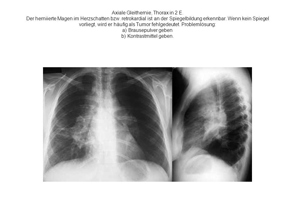 Axiale Gleithernie, Thorax in 2 E