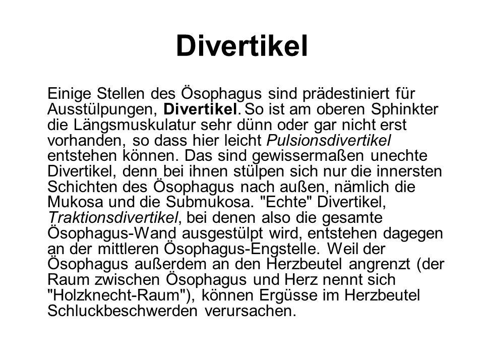Divertikel