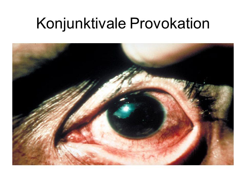 Konjunktivale Provokation