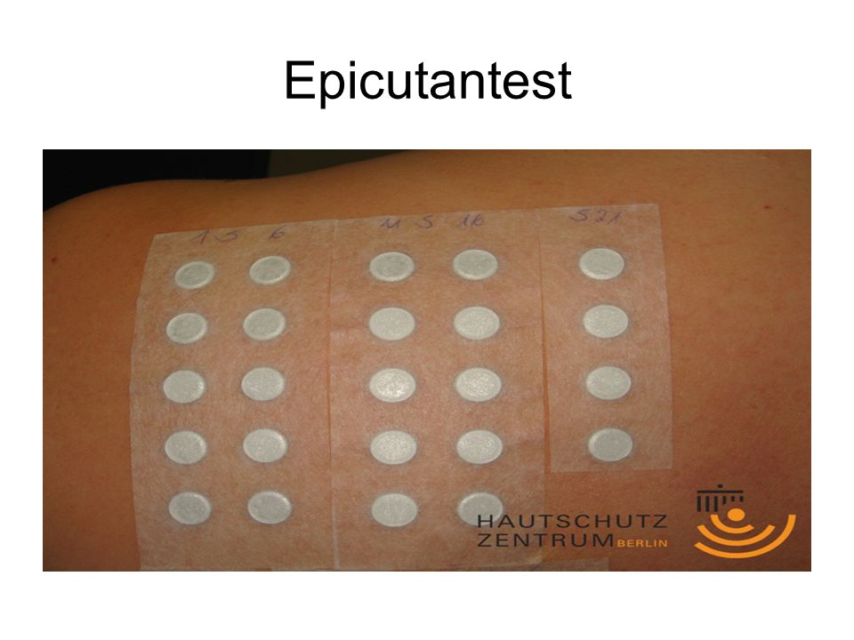Epicutantest