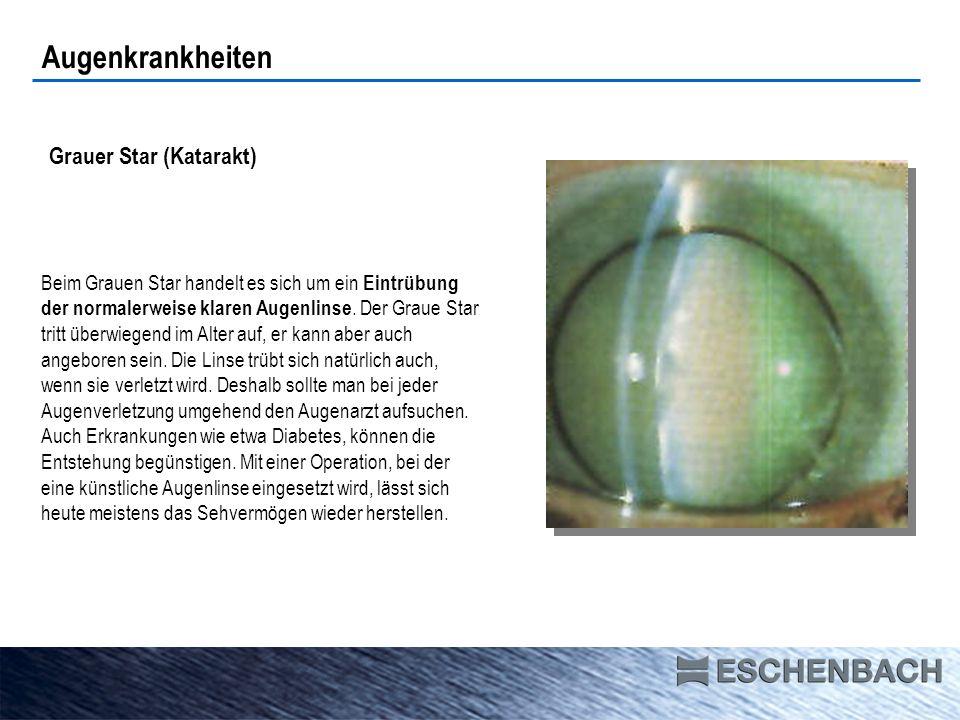 Augenkrankheiten Grauer Star (Katarakt)
