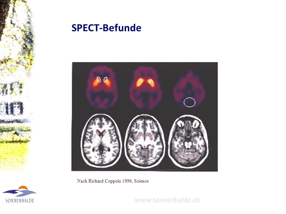 SPECT-Befunde