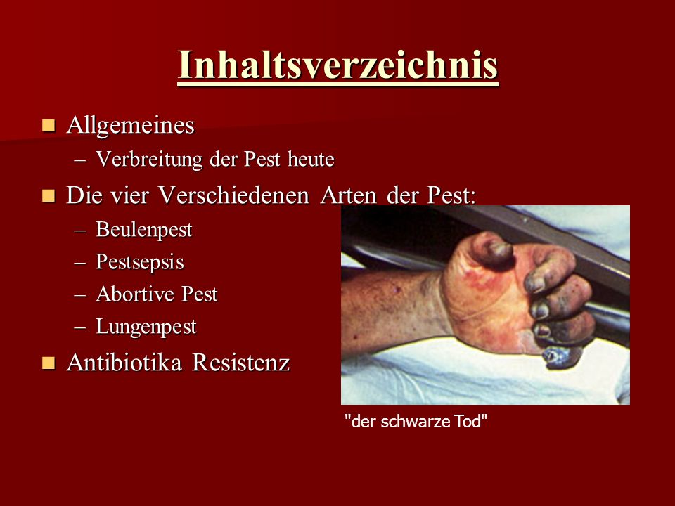 Inhaltsverzeichnis Allgemeines Die vier Verschiedenen Arten der Pest:
