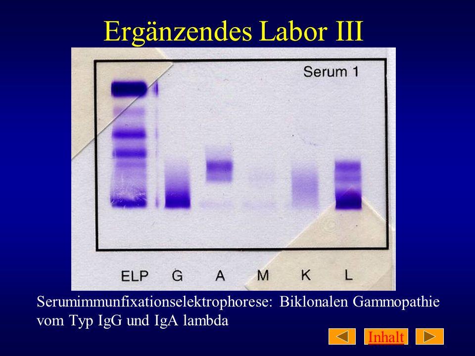 Ergänzendes Labor III Serumimmunfixationselektrophorese: Biklonalen Gammopathie vom Typ IgG und IgA lambda.