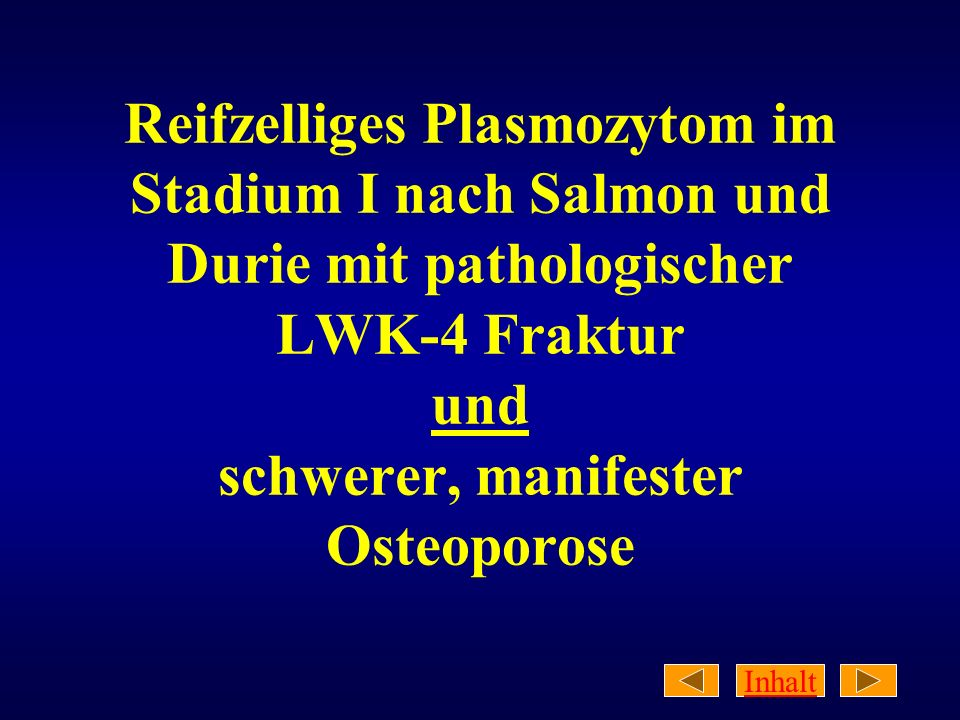 Reifzelliges Plasmozytom im Stadium I nach Salmon und Durie mit pathologischer LWK-4 Fraktur und schwerer, manifester Osteoporose