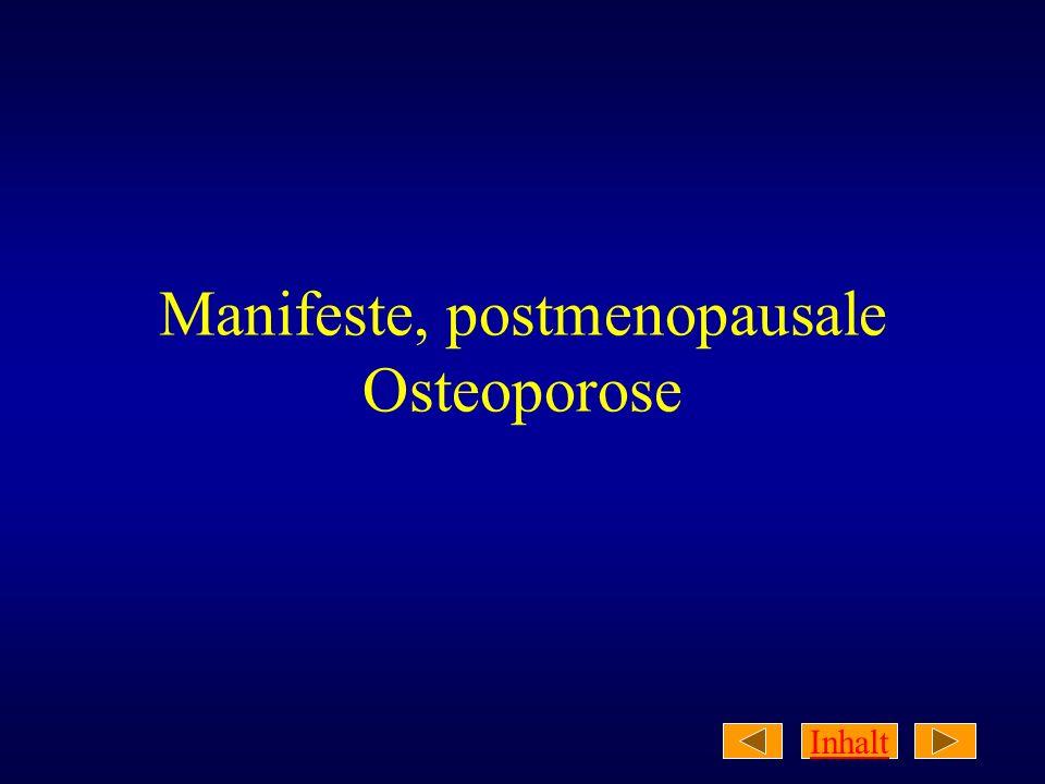 Manifeste, postmenopausale Osteoporose