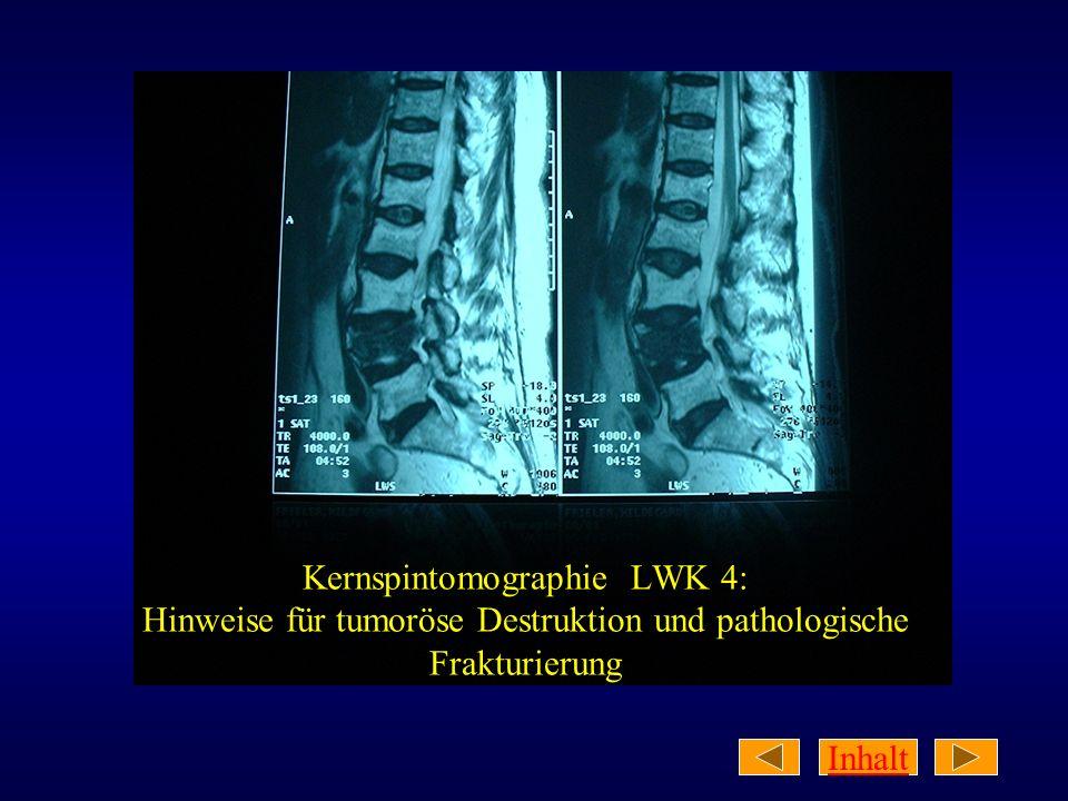 Kernspintomographie LWK 4: Hinweise für tumoröse Destruktion und pathologische Frakturierung