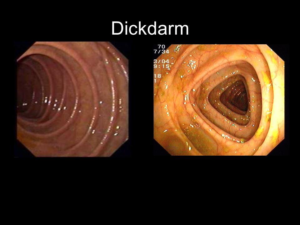 Dickdarm