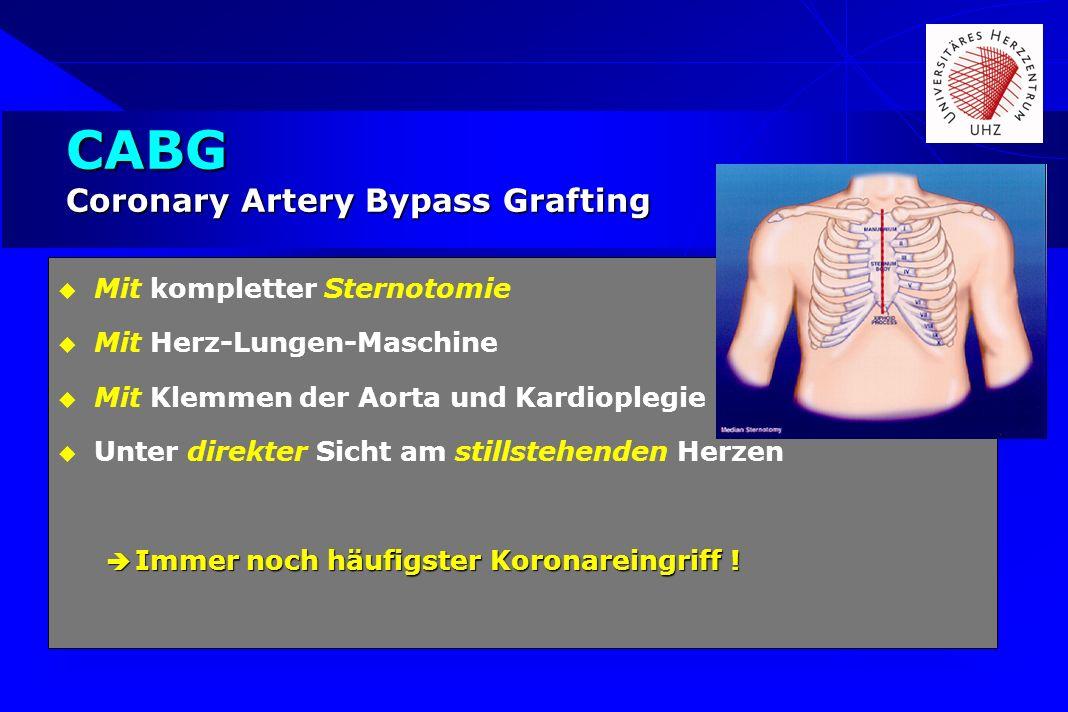 CABG Coronary Artery Bypass Grafting