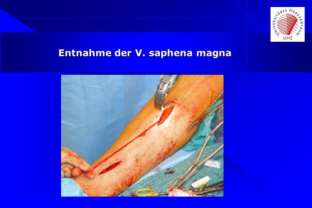Entnahme der V. saphena magna