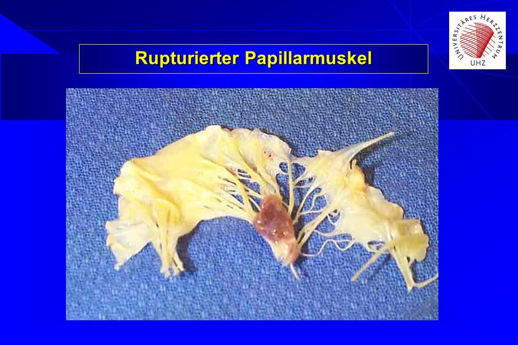 Rupturierter Papillarmuskel