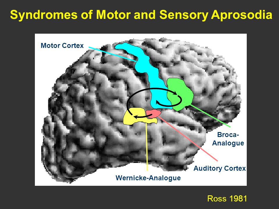 Syndromes of Motor and Sensory Aprosodia