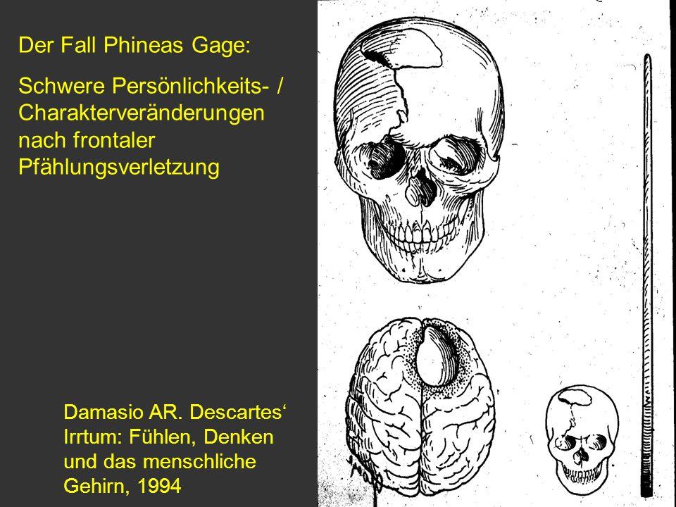 Der Fall Phineas Gage: Schwere Persönlichkeits- / Charakterveränderungen nach frontaler Pfählungsverletzung.