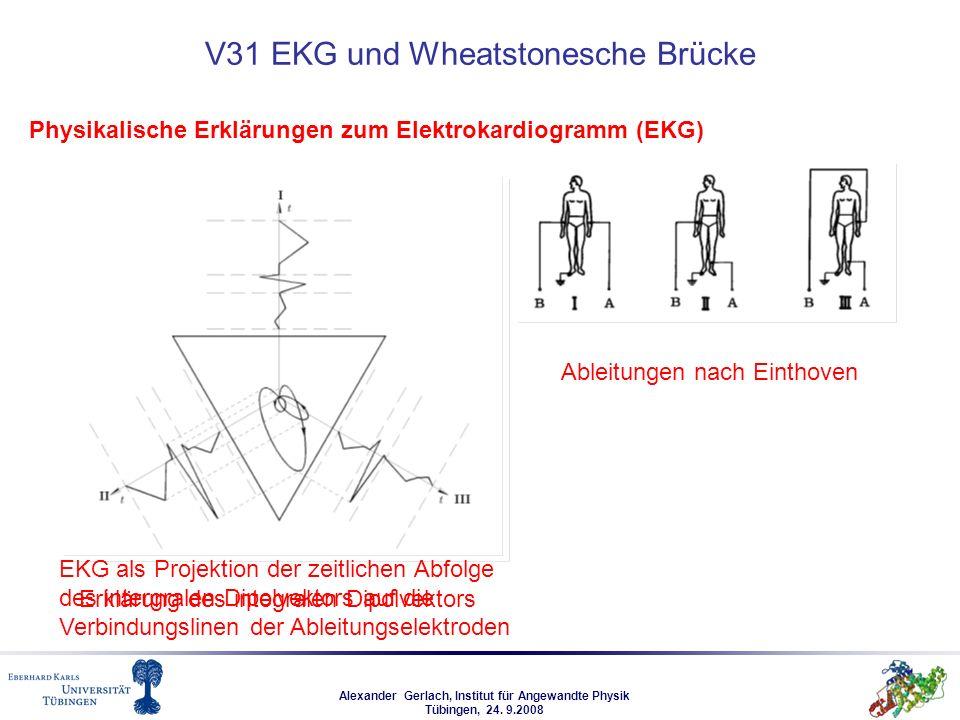 V31 EKG und Wheatstonesche Brücke