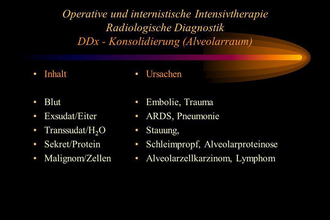 Operative und internistische Intensivtherapie Radiologische Diagnostik DDx - Konsolidierung (Alveolarraum)