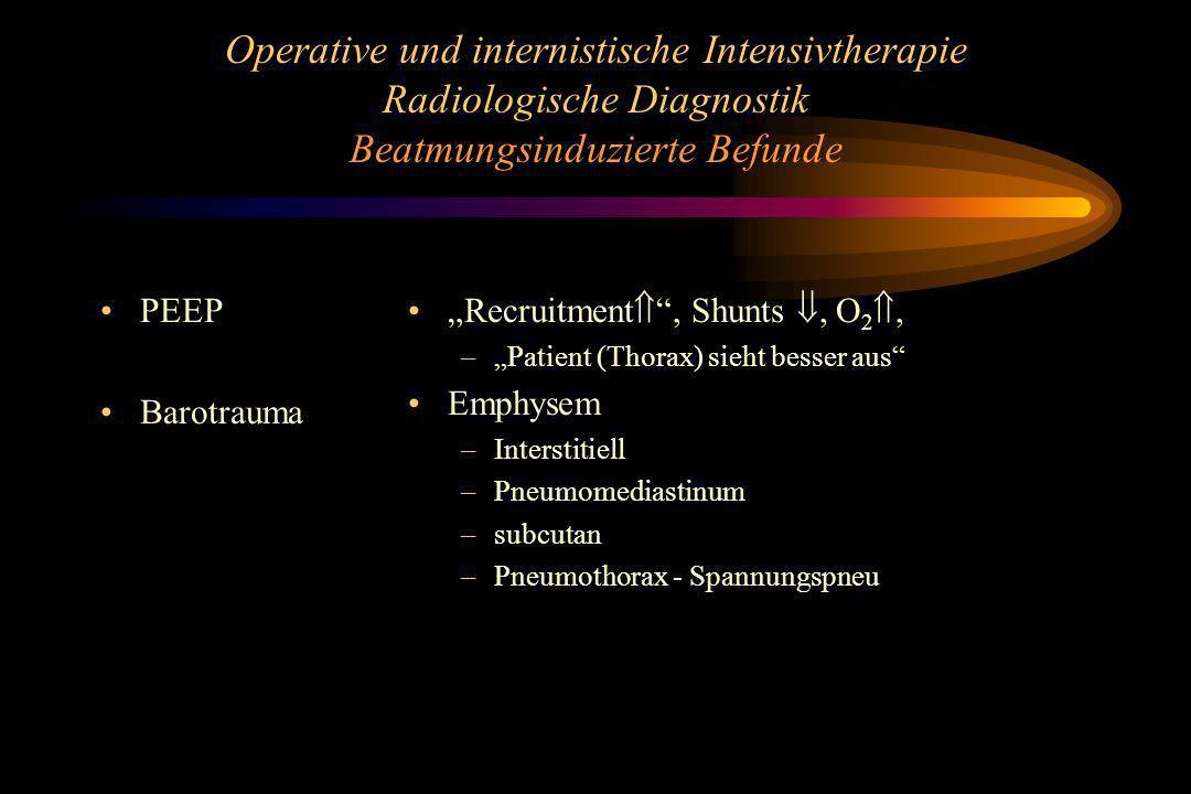 Operative und internistische Intensivtherapie Radiologische Diagnostik Beatmungsinduzierte Befunde