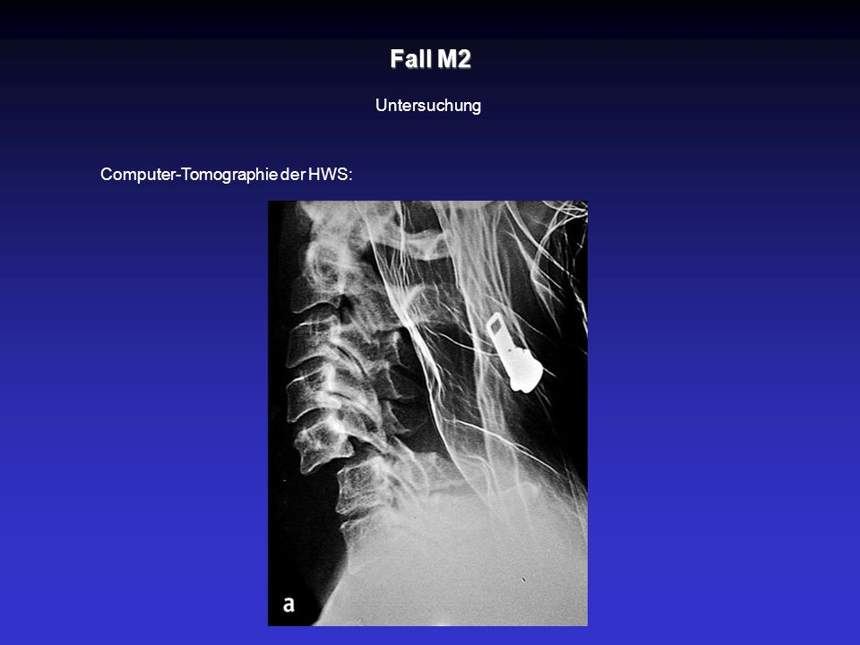Fall M2 Untersuchung Computer-Tomographie der HWS: