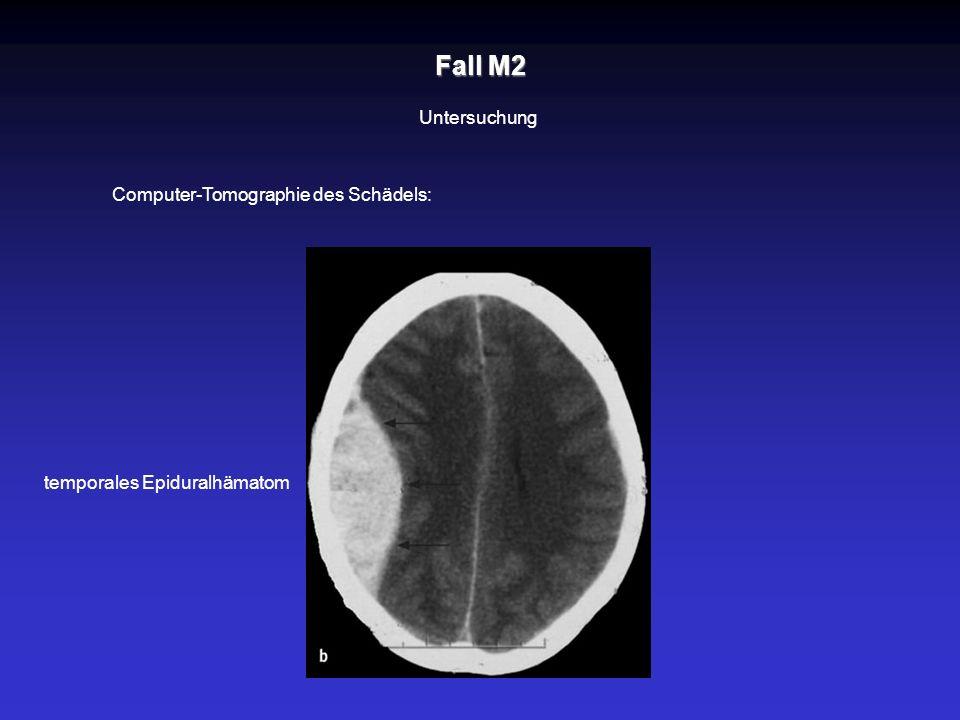 Fall M2 Untersuchung Computer-Tomographie des Schädels: