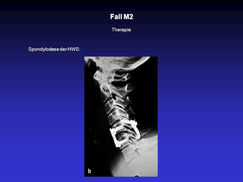 Fall M2 Therapie Spondylodese der HWS: