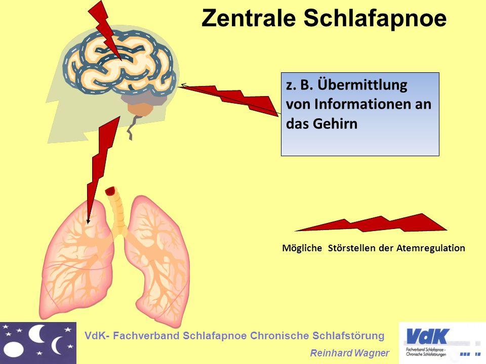 Zentrale Schlafapnoe z. B. Übermittlung von Informationen an das Gehirn.