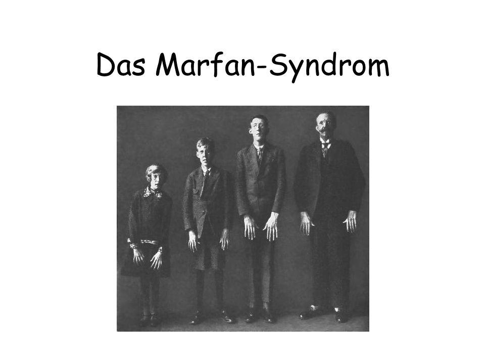 Das Marfan-Syndrom