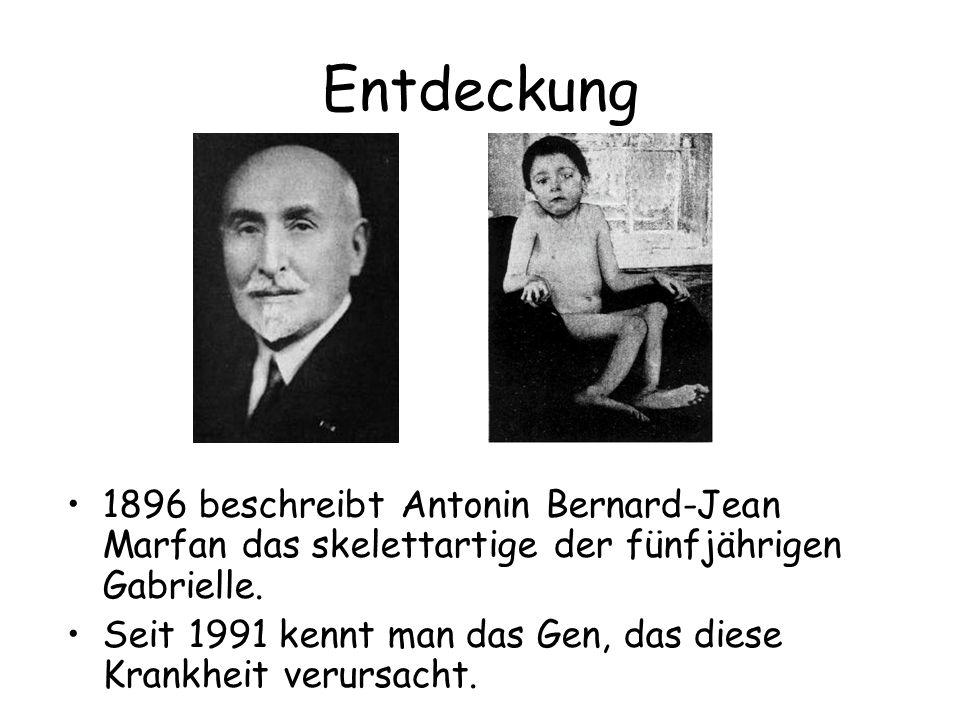 Entdeckung 1896 beschreibt Antonin Bernard-Jean Marfan das skelettartige der fünfjährigen Gabrielle.