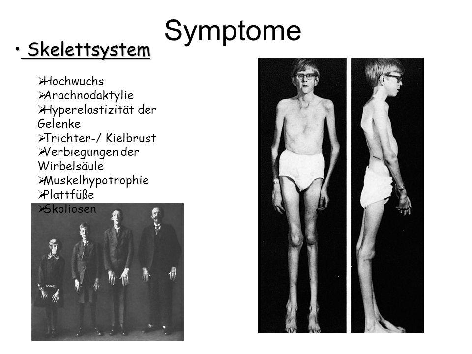 Symptome Skelettsystem Hochwuchs Arachnodaktylie
