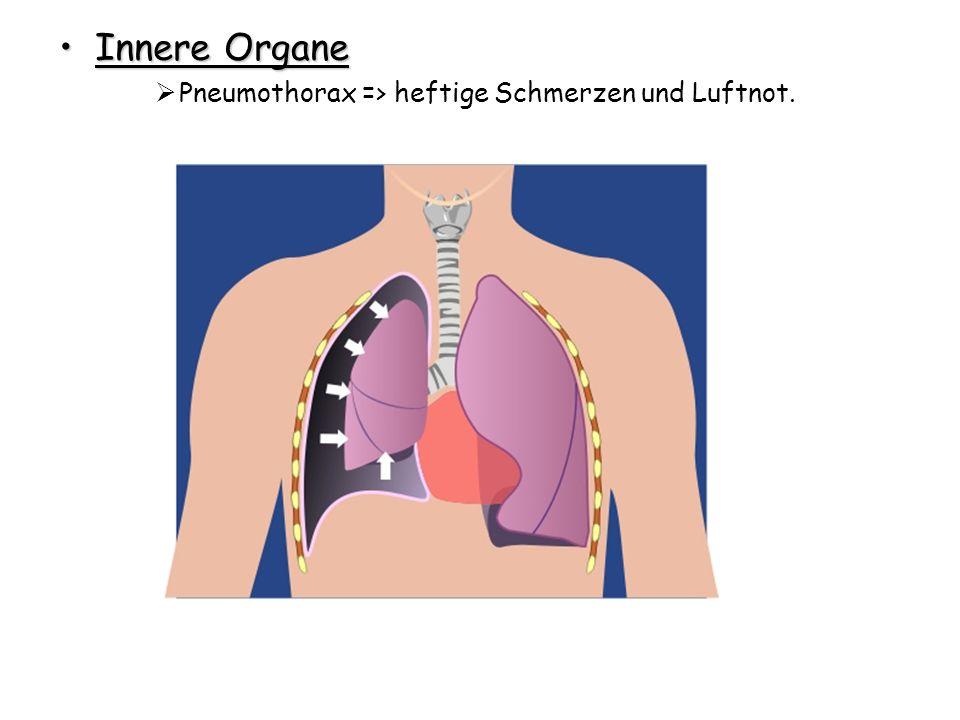 Innere Organe Pneumothorax => heftige Schmerzen und Luftnot.