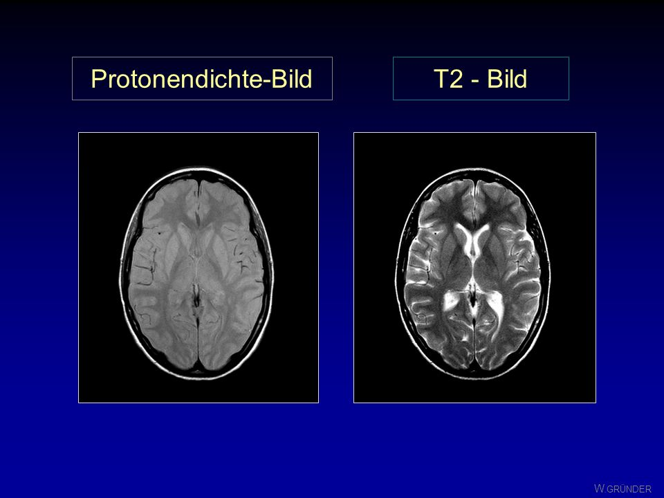 Protonendichte-Bild T2 - Bild