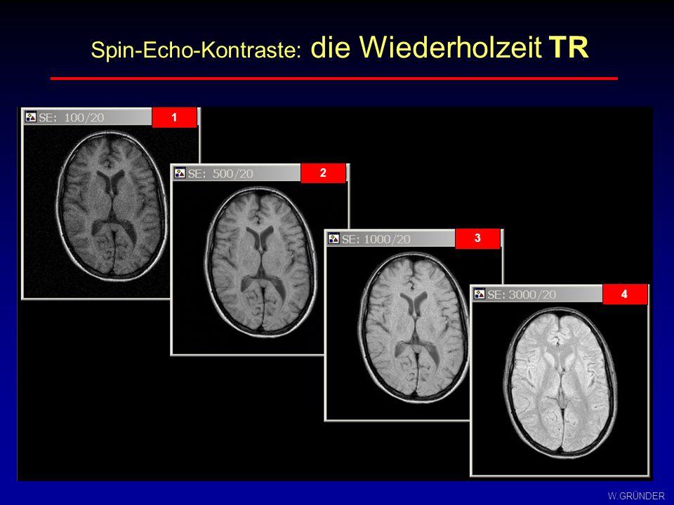 Spin-Echo-Kontraste: die Wiederholzeit TR
