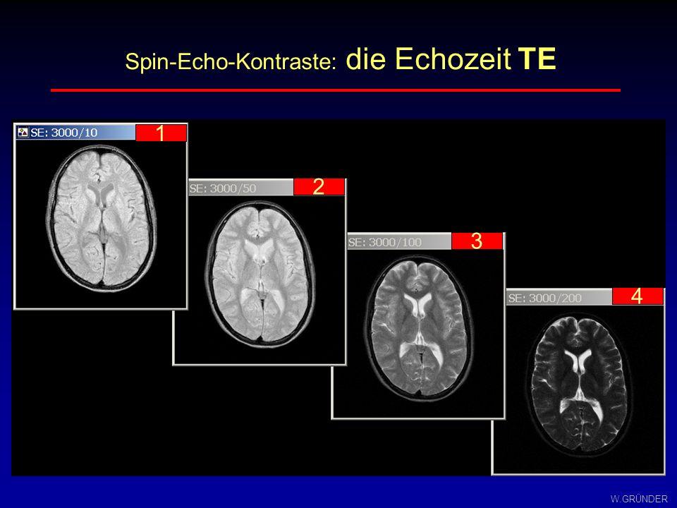 Spin-Echo-Kontraste: die Echozeit TE