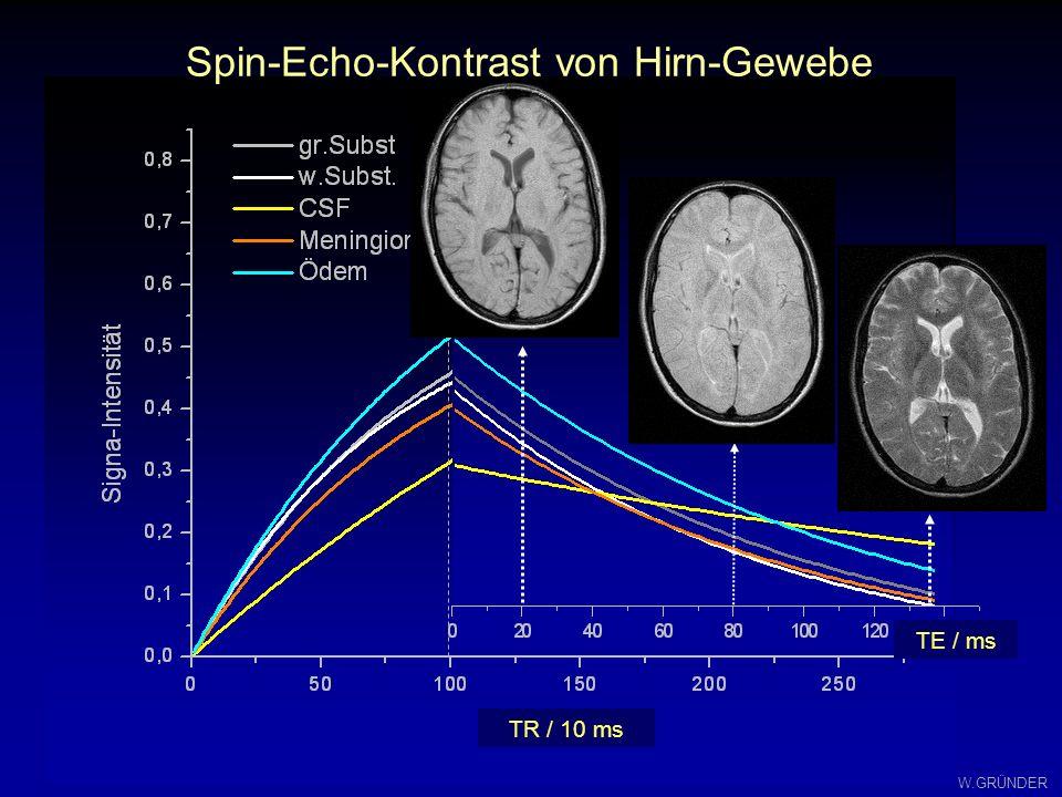 Spin-Echo-Kontrast von Hirn-Gewebe