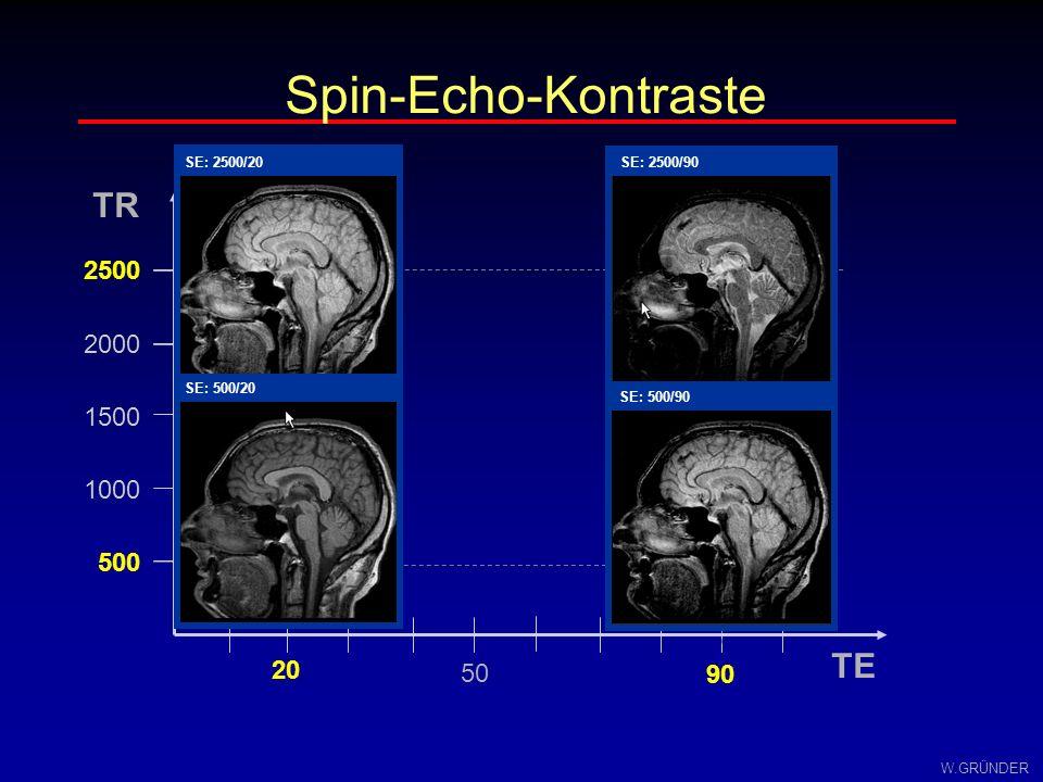 Spin-Echo-Kontraste TE TR T2 T1 PD 2500 2000 1500 1000 500 20 50 90