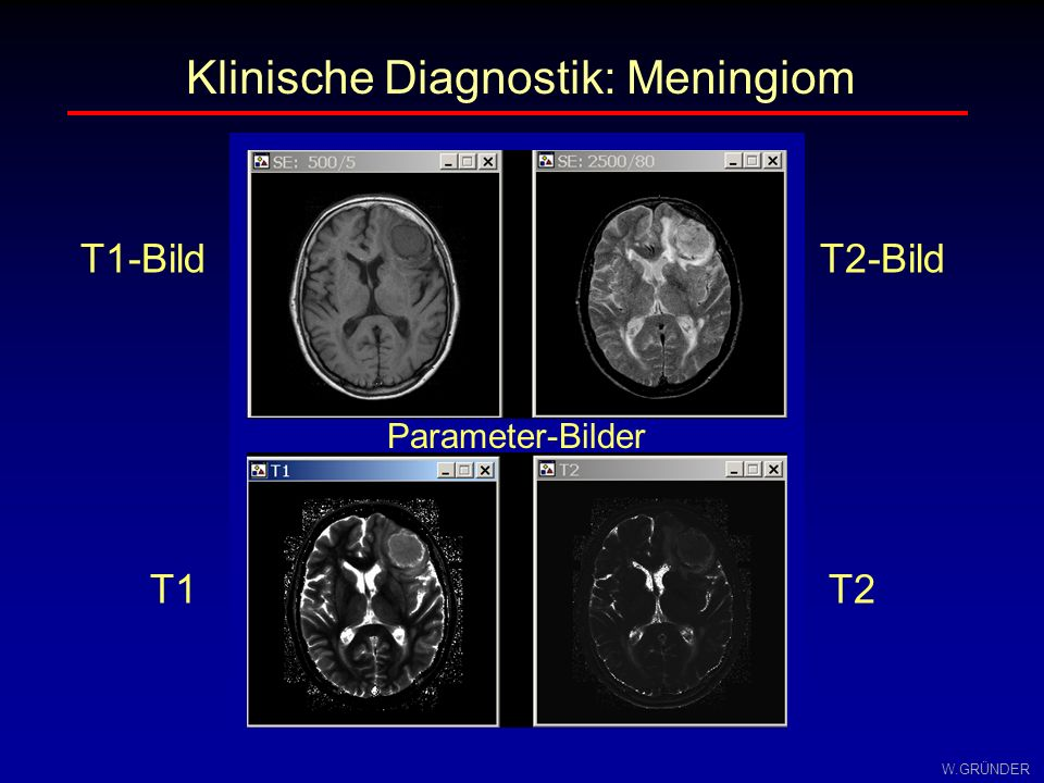 Klinische Diagnostik: Meningiom