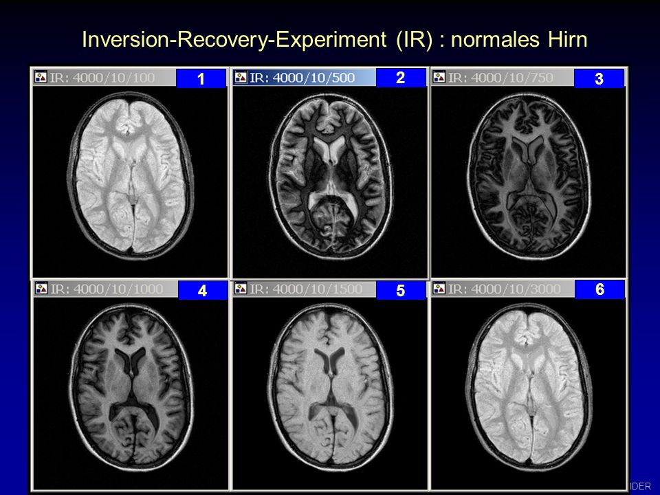 Inversion-Recovery-Experiment (IR) : normales Hirn