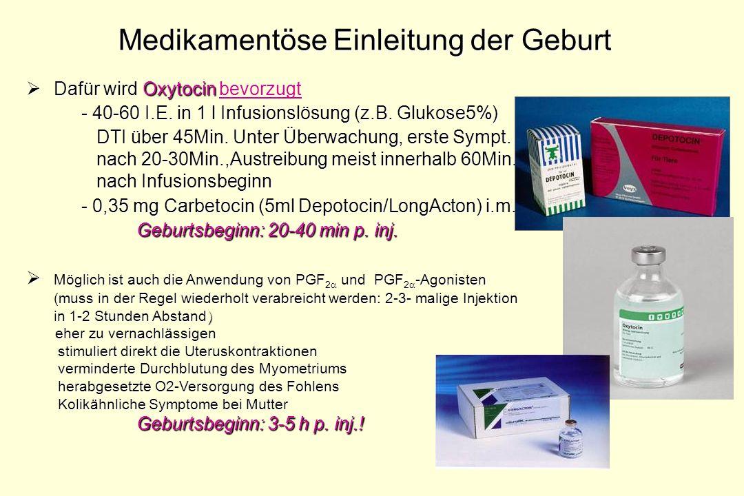 Medikamentöse Einleitung der Geburt