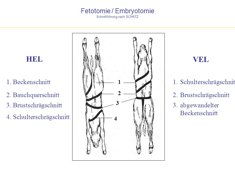 Fetotomie / Embryotomie Schnittführung nach SCHÄTZ