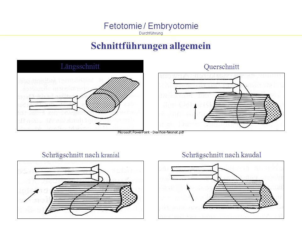 Fetotomie / Embryotomie Durchführung