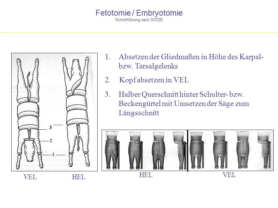Fetotomie / Embryotomie Schnittführung nach GÖTZE