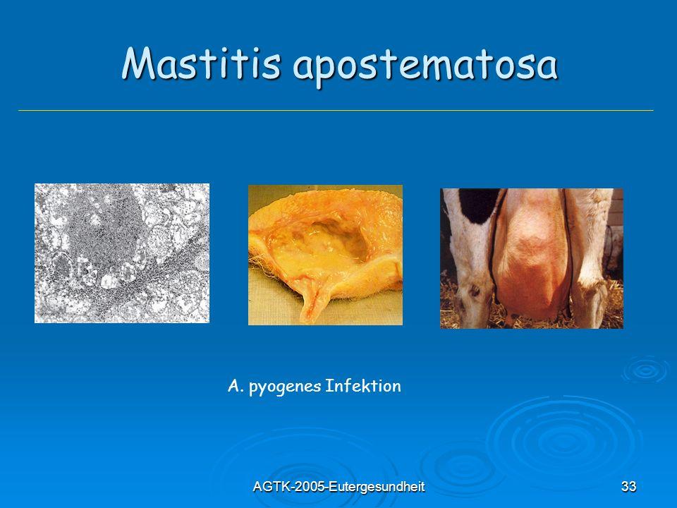 Mastitis apostematosa