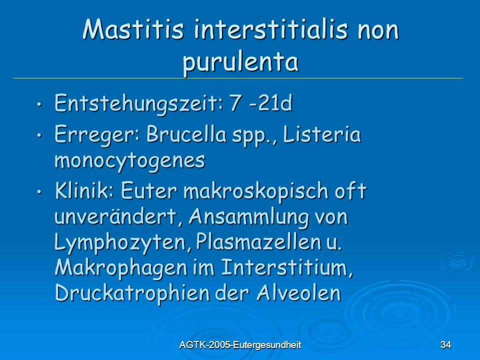 Mastitis interstitialis non purulenta