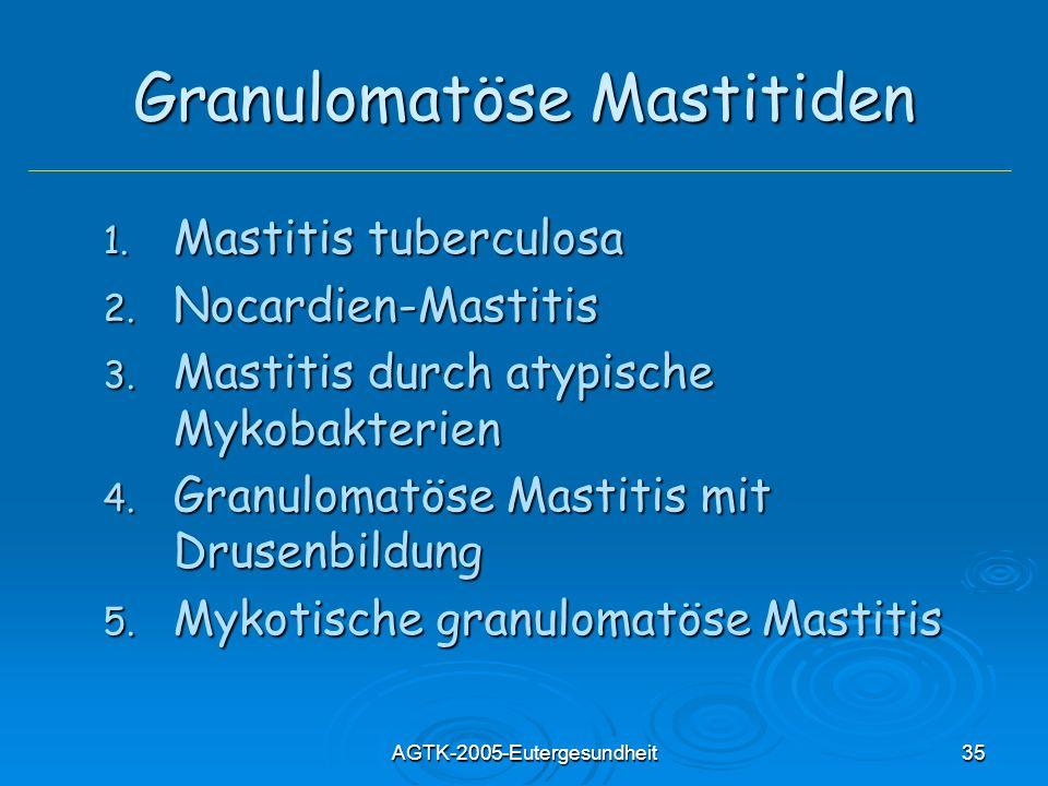 Granulomatöse Mastitiden